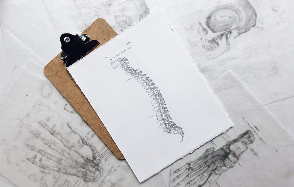 Przykładowe zadośćuczynienie za skręcenie kręgosłupa